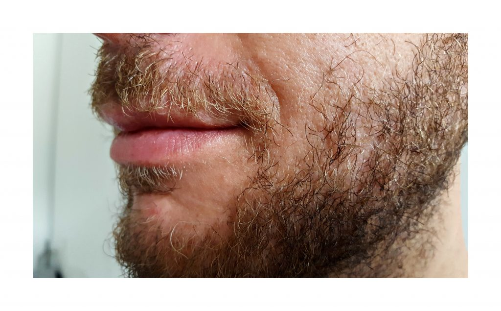 Jeder Bart ist anders und das passende Bartöl kann Wunder wirken